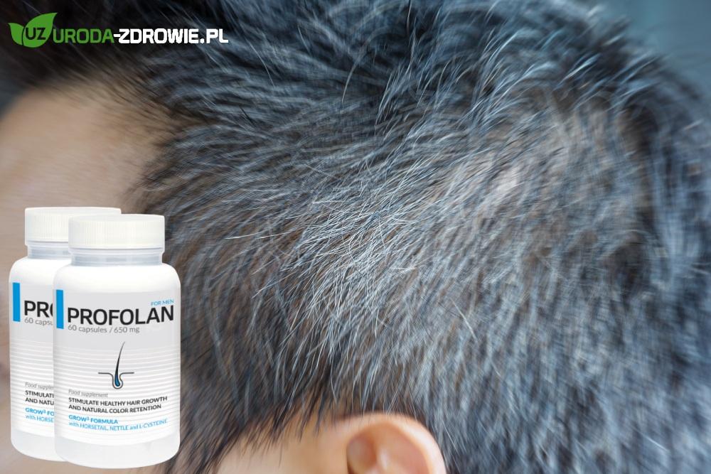zbliżenie na siwe męskie włosy